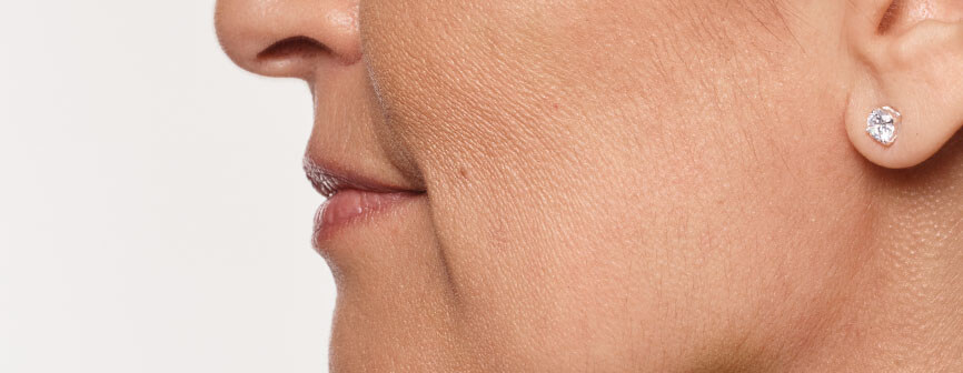 Carol's profile before Restylane® Silk lip filler