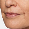 Carol's Restylane® Silk lip filler results