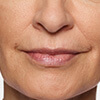 Carol's lips before Restylane® Silk