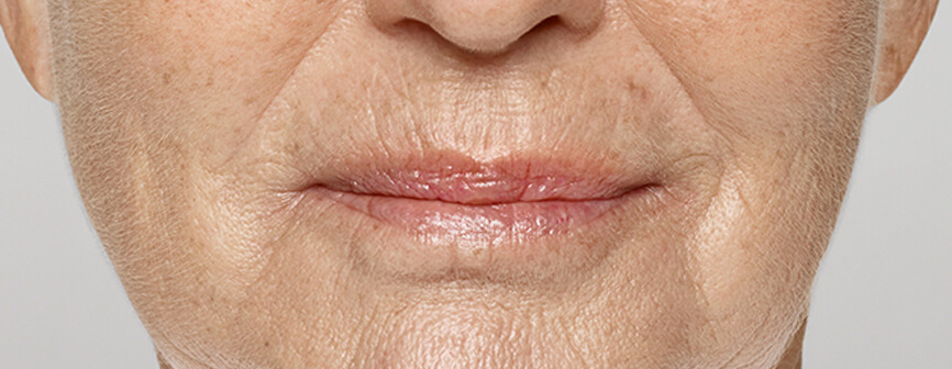 Restylane® Silk: after lip filler