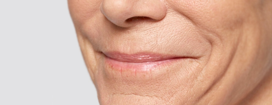 Before lip injection: Restylane® Silk