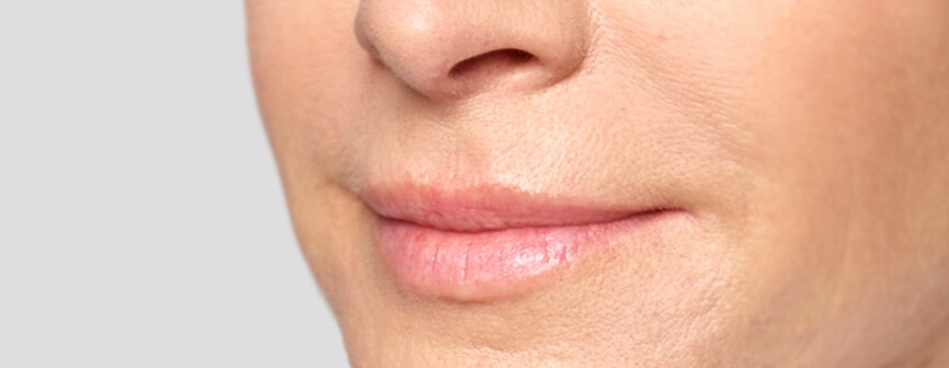 Lip filler: Jennifer's Restylane® Silk results