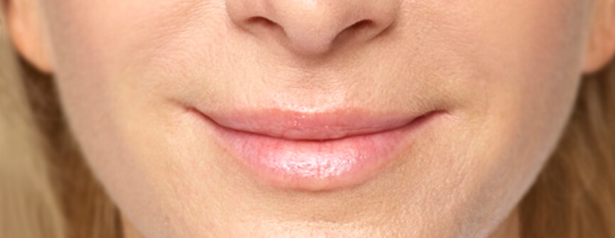 Fuller lips with Restylane® Silk