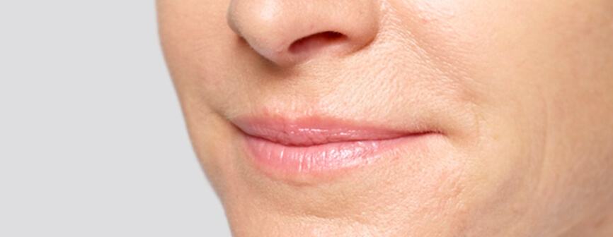 Reduce your lip lines