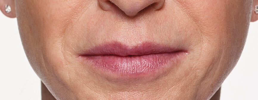 Laura after Restylane® Silk lip augmentation