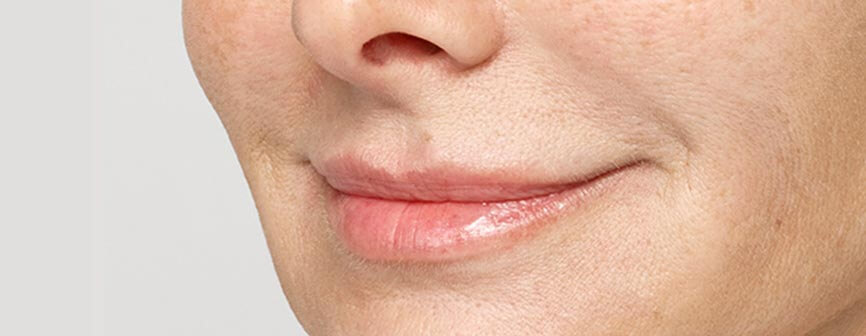 Leslie after Restylane® Silk, a lip filler