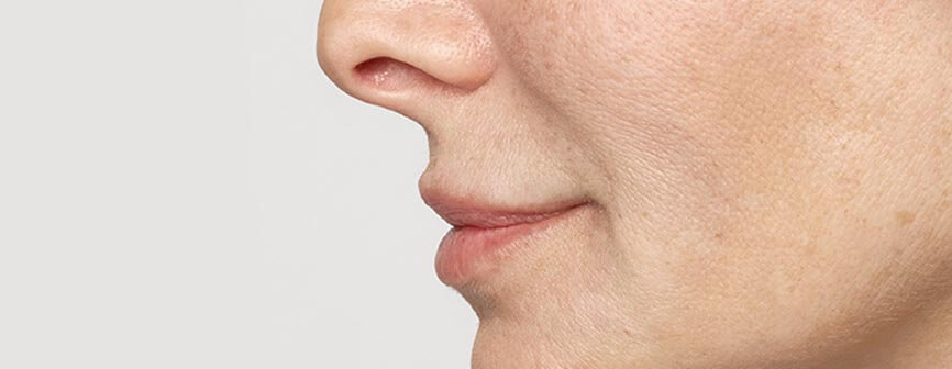 After Restylane® Silk, a lip filler