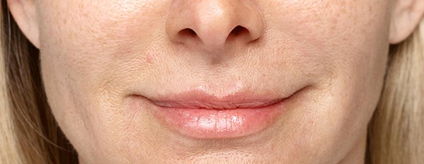 4 weeks after Restylane® Silk in the lips