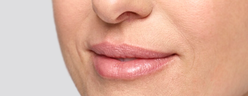 After lip enhancement with Restylane® Silk