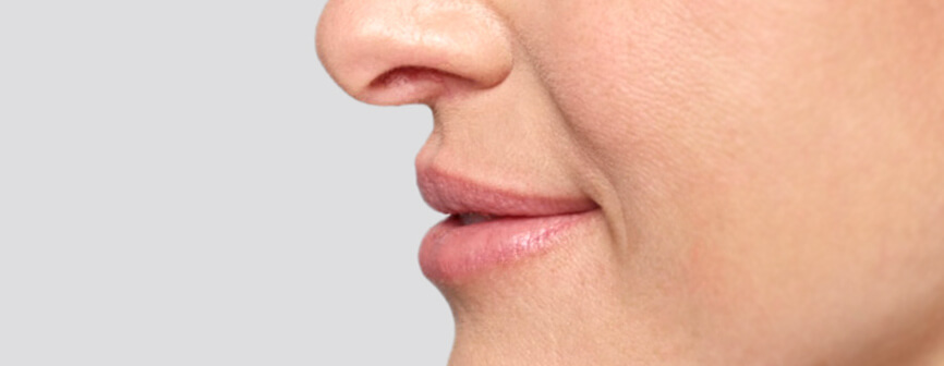Restylane® Silk: lip filler results