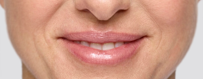 After Restylane® Silk lip filler