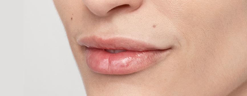 Lips after Restylane® Silk (hyaluronic acid)