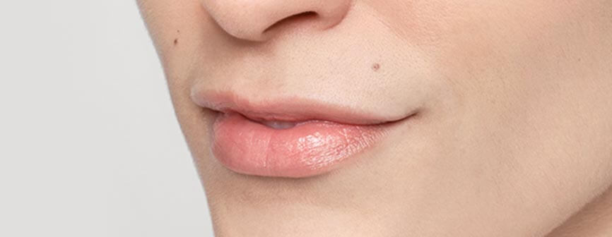 Lips before Restylane® Silk