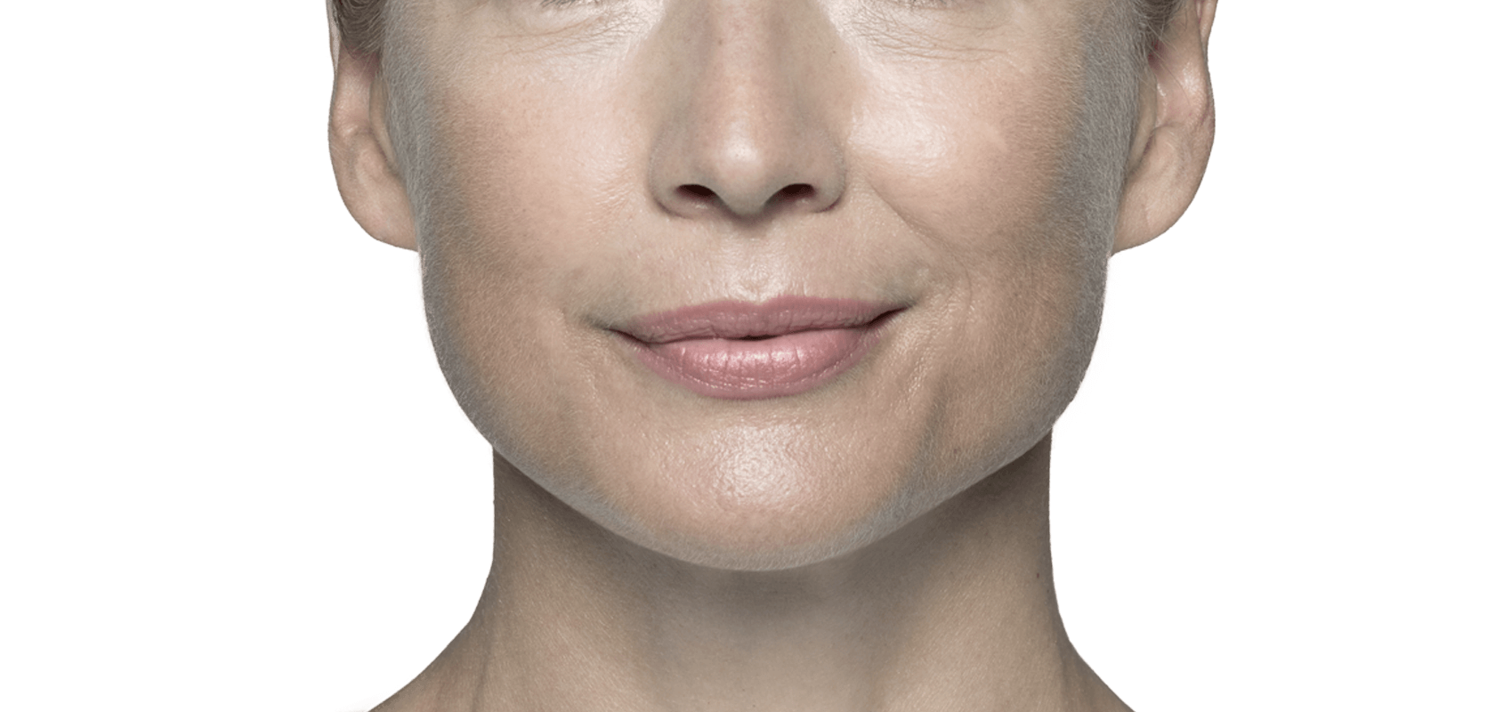 Fight facial wrinkles with Restylane® (hyaluronic acid).