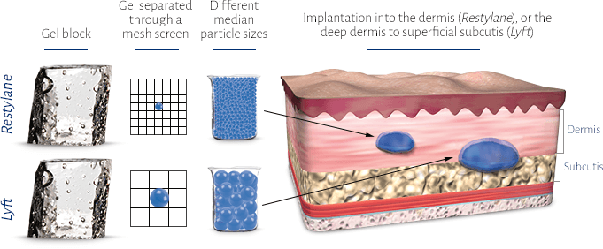 How Restylane® and Restylane® Lyft work. Restylane® and Restylane Lyft ®: Gel block, gel separated though a mesh screen, different median particle sizes, Implantation into the dermis (Restylane) or the deep dermis to superficial subcuits (Lyft).