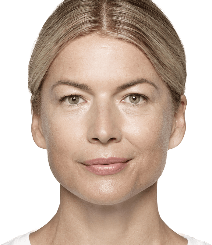 See where Restylane® products can help reduce your facial wrinkles.