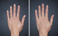 Restylane® Lyft for hands before and after