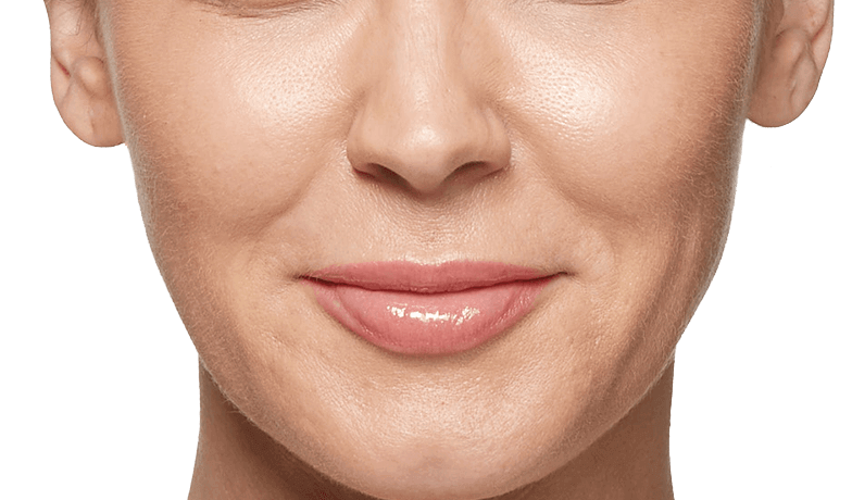 Where can Restylane® (hyaluronic acid) be used?