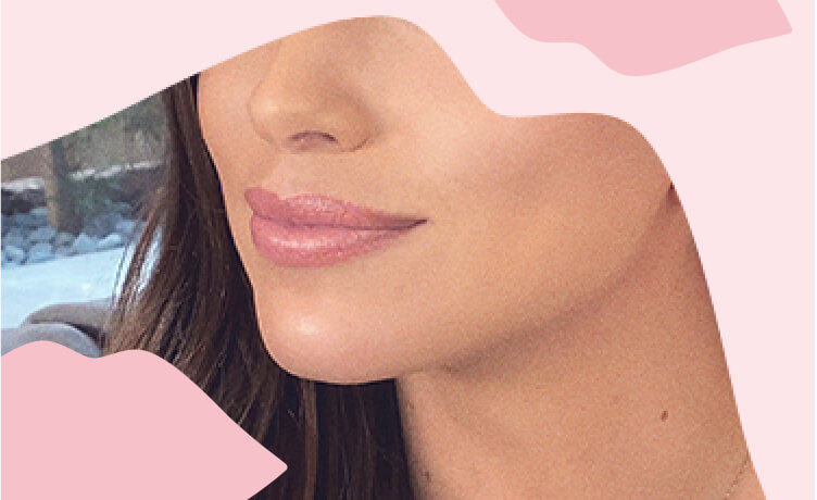Restylane® Kysse: a lip filler with XpresHAn Technology™