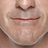 Jeff's before and after results with Restylane®